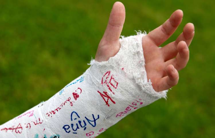 An arm in a cast covered with signatures