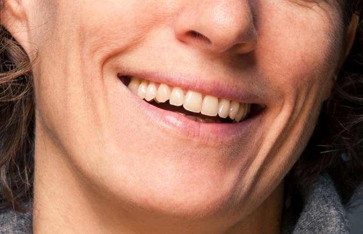A close-up of a woman's smile