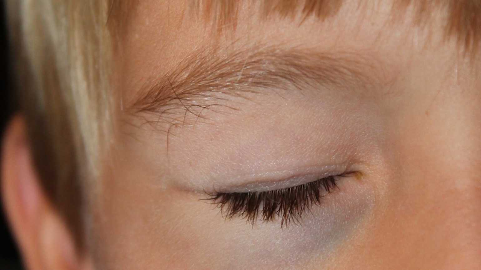 Shawnelle's youngest son proudly sports his first shiner.